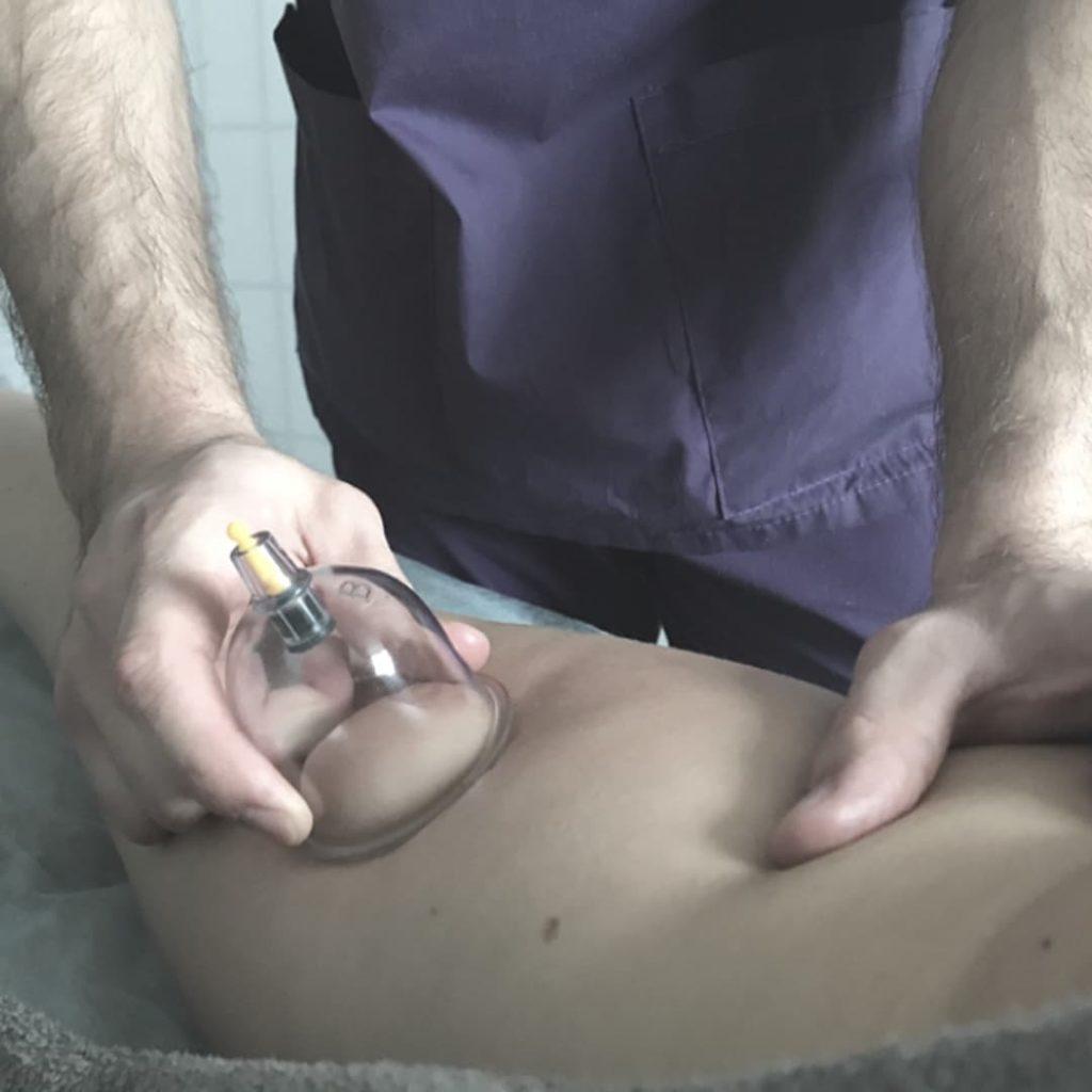 баночный массаж ног